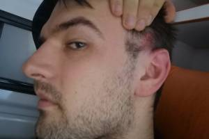 В Брянске мужчине выстрелили в висок на проспекте Ленина
