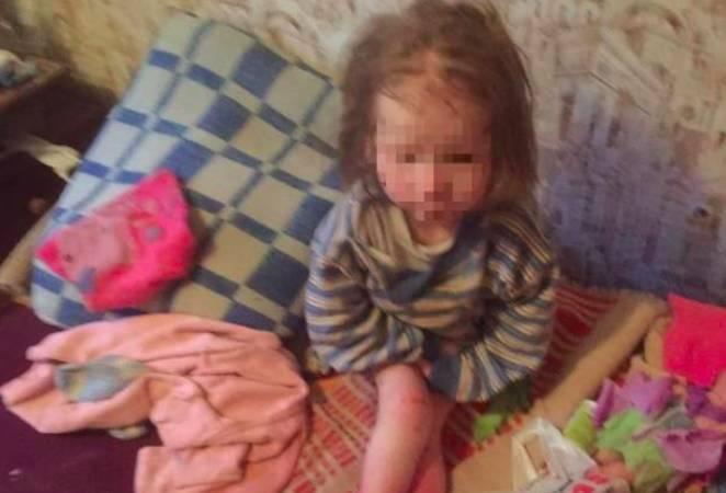Об истощенной брянской девочке-маугли с обмороженными ногами узнала вся Россия