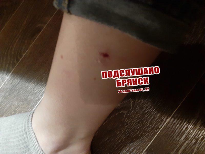 В Брянске на Набережной стая бродячих псов напала на девушку