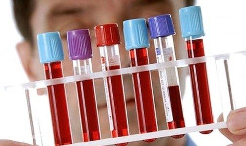 Жителям Новозыбкова предложили узнать свой ВИЧ-статус