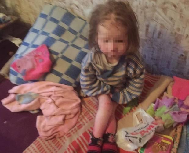 Опубликовано фото пострадавшей от приемных родителей девочки