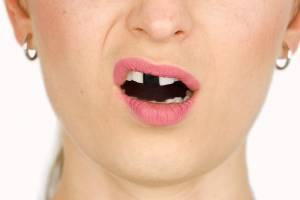 В Новозыбкове 22-летней девушке подруга сломала нос и выбила зуб