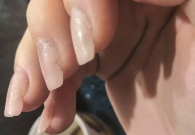 В Брянске маникюрша едва не лишила клиентку ногтей