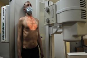 В Унече больного туберкулезом заставят лечиться через суд