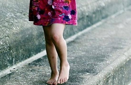 В Брянске 7-летнюю девочку с обмороженными ногами спас сосед