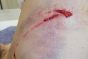 В Брянске возле школы №71 на женщину напали бродячие собаки