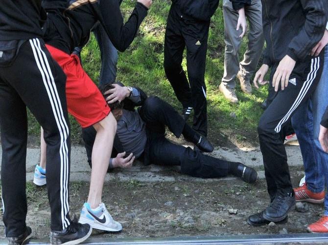 В Карачеве подростки жестоко избили пожилого человека